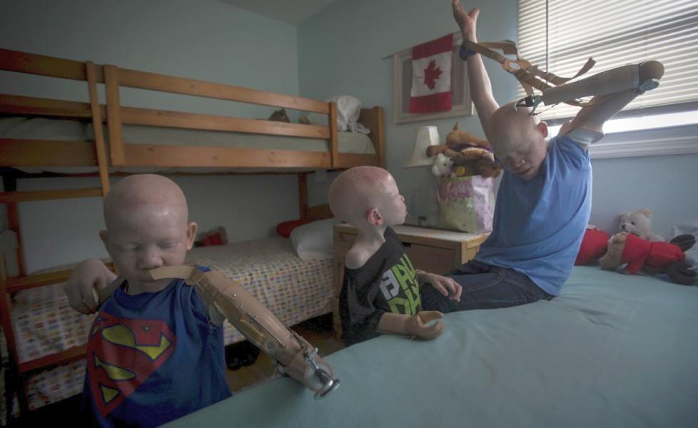 bambini albini protesi